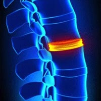 Why the Body Can't Correct its Own Vertebral Subluxations