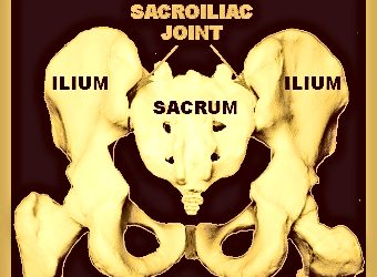 Sacroiliac Joint Subluxations